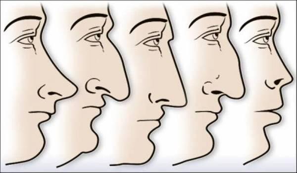 حداقل سن عمل زیبایی بینی، دو عارضه حاد جراحی غیر استاندارد